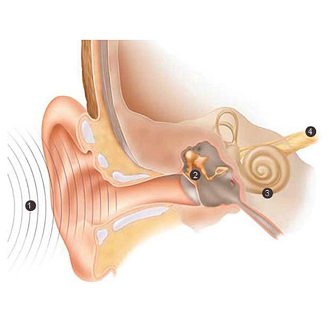 come-sentiamo-tipi-ipoacusia-apparecchi acustici-ti sento gulotta trapani